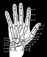 arthrosis arthrosis kezelése növekedés az ujj ízületén sérülés után