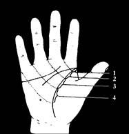 fájdalom az ujjak ízületeire történő nyomáskor ízületi fájdalom tünetei bal térd